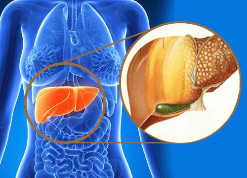 Es el hígado graso reversible? – Medicina Integrativa